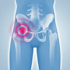 Schmerzen in der Hfte - Hftchirurgie - 3D Grafik