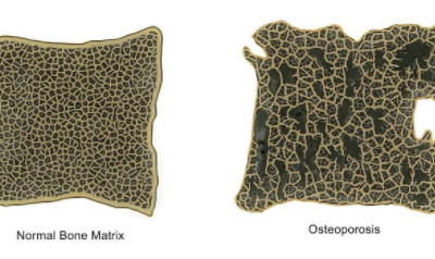 Facts About Osteoporosis