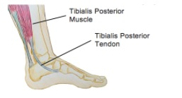 Tibialis Posterior Tendinopathy