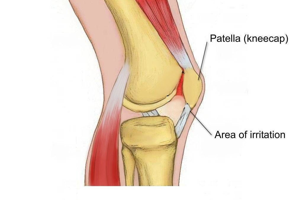 Runner's Knee (PFJ Syndrome)
