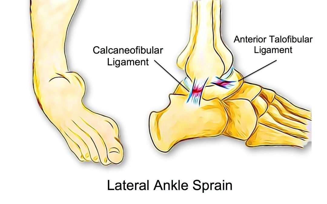Can Poor Balance Lead To Ankle Sprains?