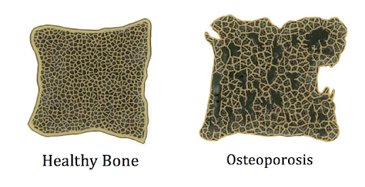 Focus On Osteoporosis