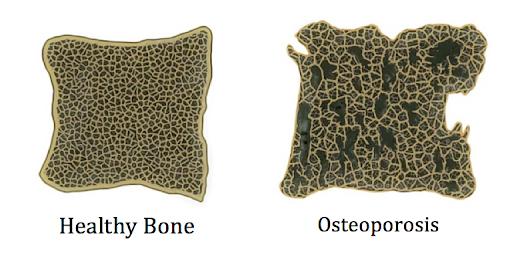 Focus On Osteoporosis